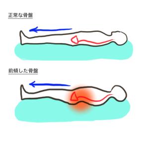 骨盤が前に傾くと、足を伸ばした状態で腰が反ってしまいます。