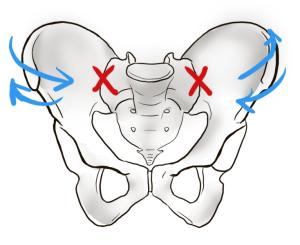 動かなくなった骨盤。関節がロックされると、骨盤を使って歩くことができず腰から上を振る歩き方になります。
